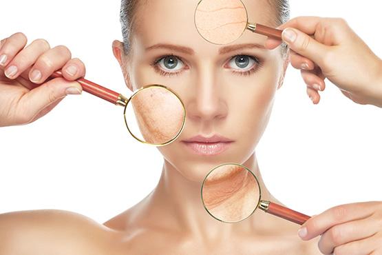 Tratamiento del acné, verrugas y varices