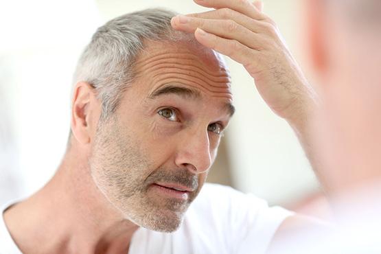 Calvicie y caída de cabello